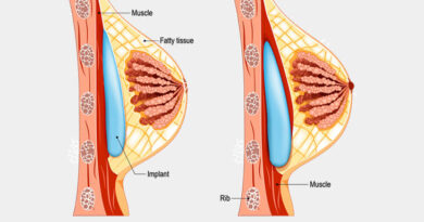 The Roadmap to Breast Lifting