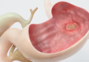 Is it Possible to Cure Peptic Ulcers with Baking Soda?