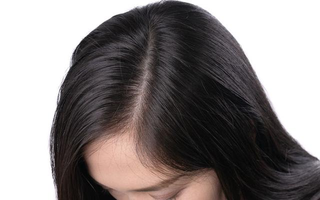 How Do I Get Rid of Scalp Scabs, Sores, and Crusty Scalp Build Up