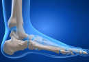 Prevent and treat knee injuries with these steps!