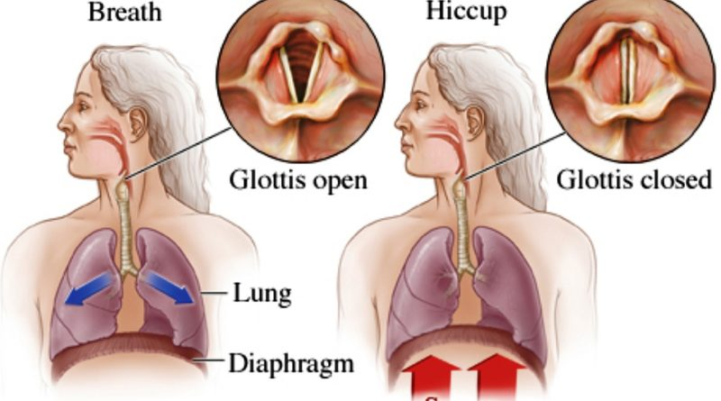 What causes hiccups?